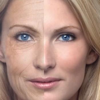 723-como-prevenir-o-envelhecimento-prematuro