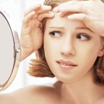 Saiba mais sobre a acne